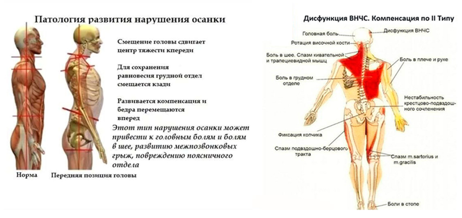 ulibka3
